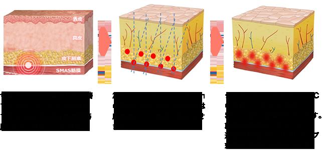 1.今まで外科的治療でしか改善できなかった、たるみの原因であるSMAS筋膜(表情筋筋膜)までアプローチが可能。 2. 1.5mm、3.0mm、4.5mmの深さに収束された超音波は摩擦熱により高温を発生させます。 3. ターゲットバリアで60-70℃の温度に上昇させ、真皮・SMAS層に熱損傷を与えます。創傷治癒過程でコラーゲン造成が促進され、リフトアップ効果が長期に持続されます。