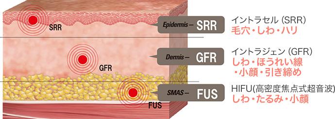 イントラセル(SRR)毛穴・しわ・ハリ イントラジェン(GFR)しわ・ほうれい線・小顔・引き締め HIFU(高密度焦点式超音波)しわ・たるみ・小顔